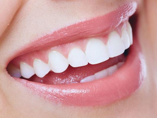 Gesundes Lächeln mit weißen Zähnen