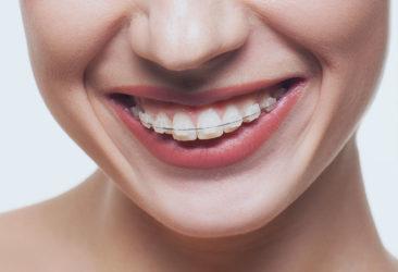 Erwachsene lächelnde Frau mit fester Zahnspange