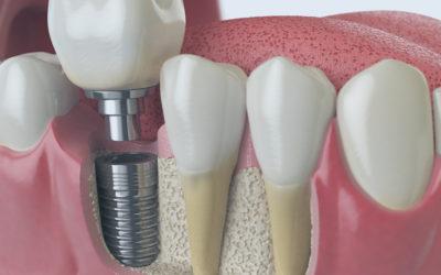 zahnarzt-heidelberg-implantologie
