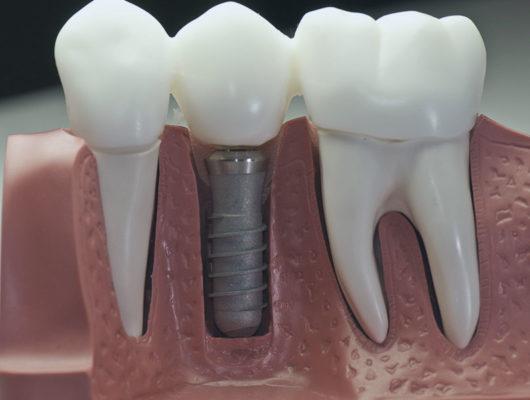 zahnarzt-heidelberg-implantologie3