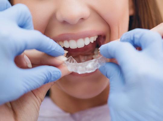 Frau in Behandlung mit durchsichtigen Invisalign® Zahnschienen