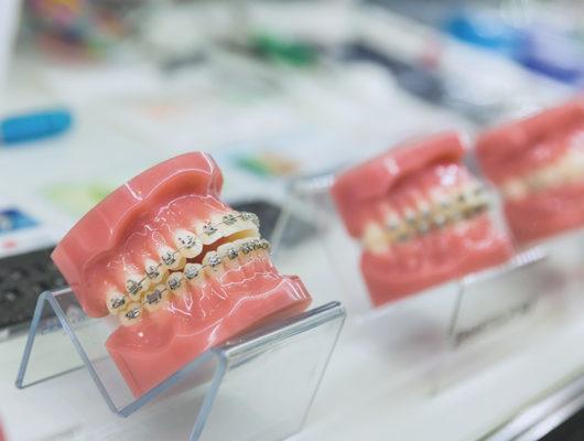 Modelle fester Zahnspangen