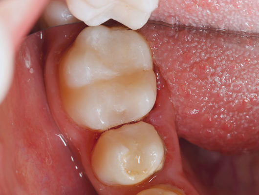 Zahnfarbene Brackets und Bögen