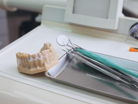 Knochenaufbauten beim Zahnarzt Heidelberg