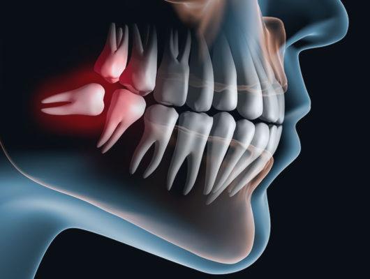 3D-Darstellung von Problemen mit Weisheitszähnen